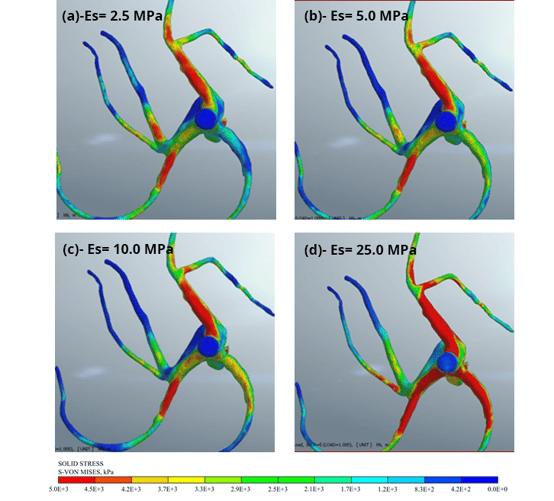 Figure 11 Scenarios analyzed depending of the saddle extension